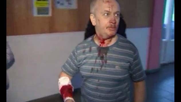 Russian Meteor Injuries