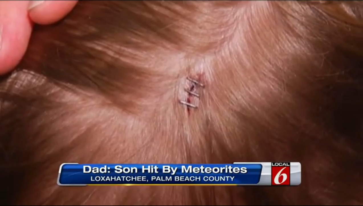 Did Falling Meteorites Injure 7-Year-Old Florida Boy?