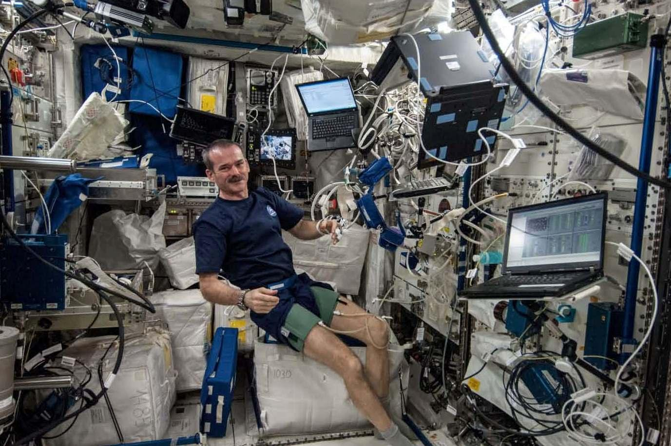 Astronauts May Suffer Artery Damage on Long Missions